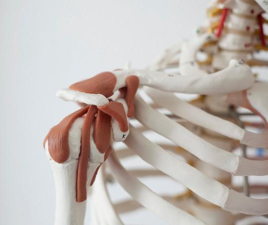 Oberarm knoten Muskelverhärtung im